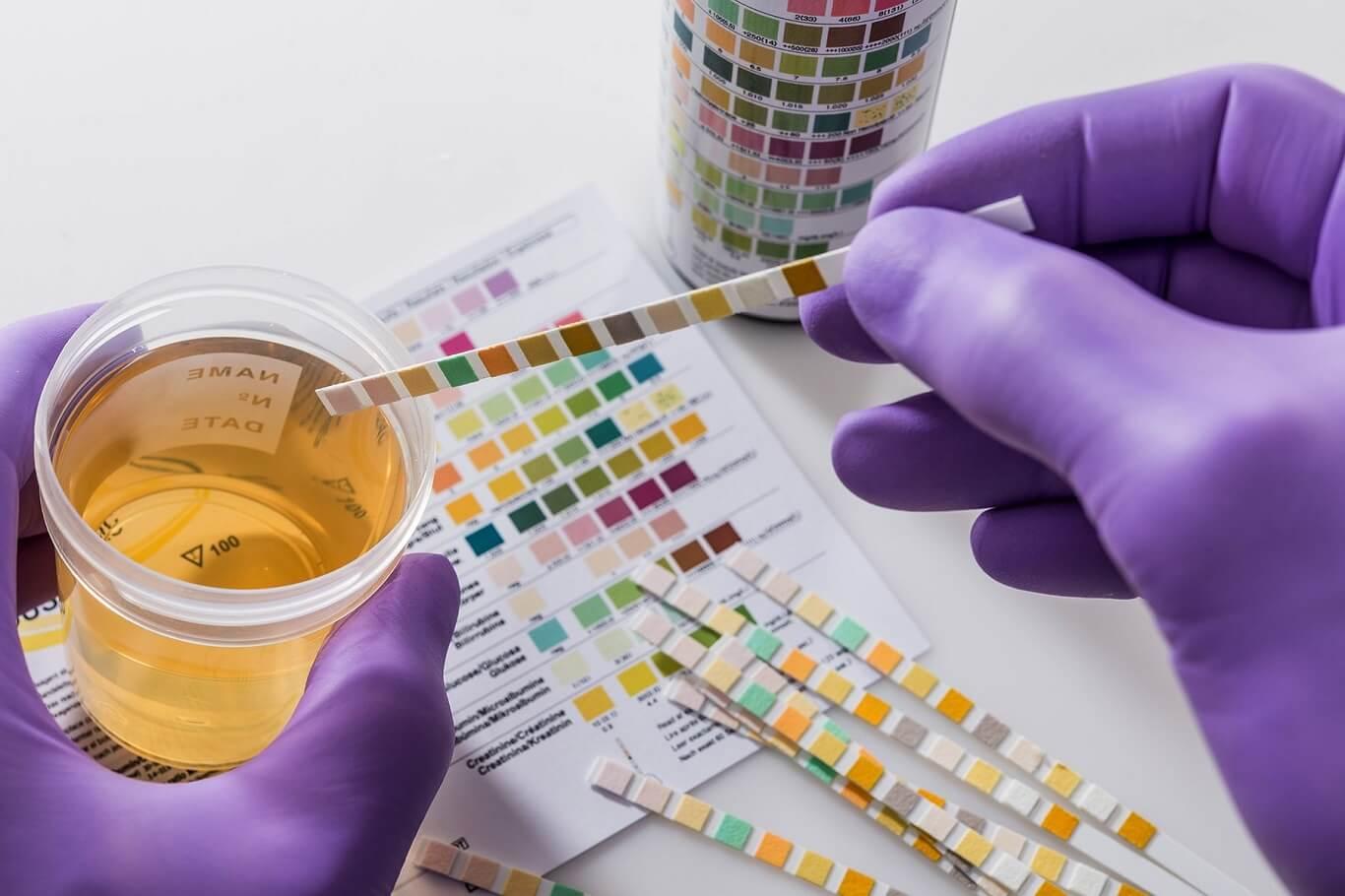 are random drug tests legal